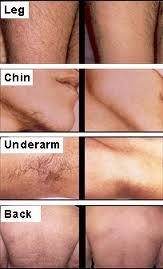 Before and After Treatment Hair Removal by Al Tamayoz Clinic Dubai